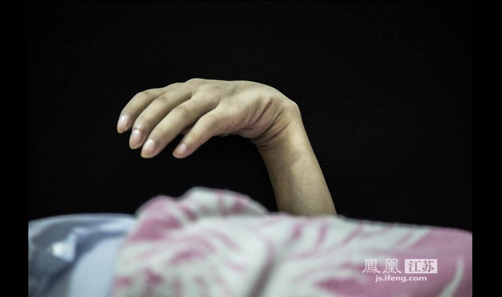 """于志国双手的肌肉几近消失,""""弯曲""""成正常人无法做到的角度。虽然四肢无法动弹,但他并没有失去知觉,冷热痛痒都能感受。夏天他能敏锐感觉到蚊子叮咬,却只能眼睁睁地看着无力拍打。(彭铭/摄 胥大伟/文)"""