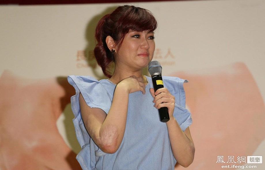 selina回康复医院代言忆烧伤落泪