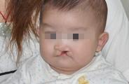 唇腭裂对患者会有哪些影响?