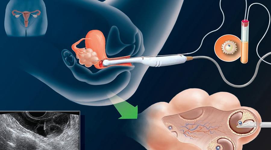 B超引导经阴道取卵也是有风险的。手术过程中,子宫、膀胱、肠管、血管及其他卵巢周围的盆腔结构,有可能被损伤,如果创伤严重,可能还需开腹修补损伤。另外,手术还可能造成卵巢急性损伤、出血、感染、甚至不孕。这类损伤的几率为1‰-2‰。