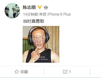 [明星爆料]陈志朋脸颊烧伤疑毁容?自评:当时真勇敢(图)
