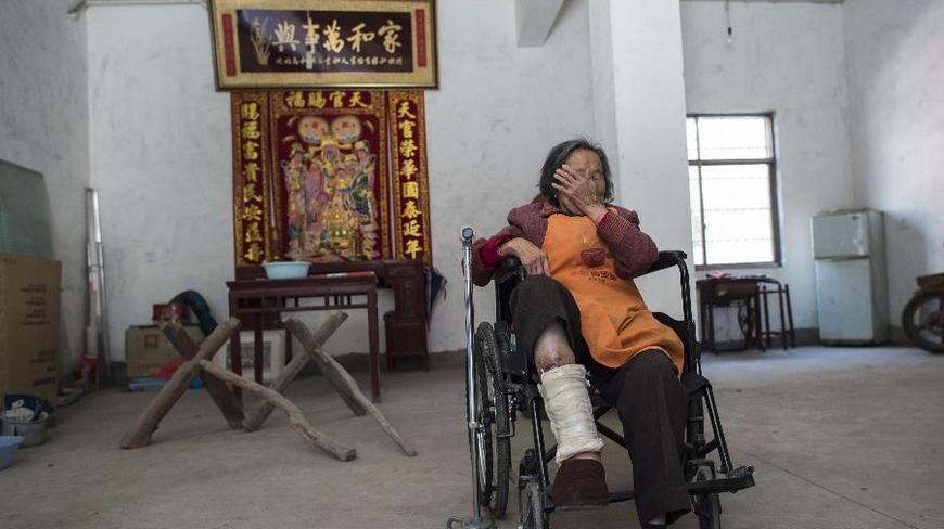 74岁的董桂第,坐在金华市婺城区上邵移民村家中轮椅上。她说:我3岁就得了烂脚病,反反复复烂了多少次都记不清了,烂得厉害时特别疼。现在在家里活动一下要靠手杖,远一点的路要靠轮椅。