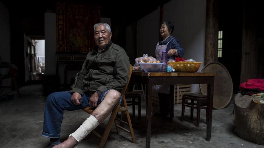 84岁的冯欢喜坐在丽水市莲都区联城街道长濑村家中.他说:1942年我父亲开始烂脚,1947年去世。大哥冯欢连1944年开始烂脚,1984年去世。1944年起我也发病,先是痒,抓破后溃烂化脓。同村烂脚的还有几个人,现都已死了。