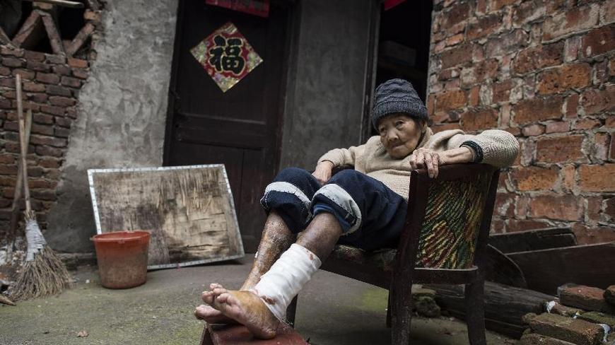 86岁老人崔菊英,衢州市柯城区黄家街道新铺村人(4月18日摄)。从记事起,她的双腿就开始溃烂,经常流脓发臭。前几年,崔菊英常用塑料布包住伤口以防蚊虫叮咬,但伤口反而烂得更厉害。