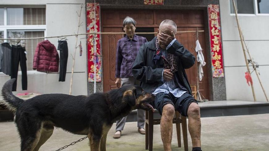 81岁的叶江山侬(前),在衢州市柯城区花园街道下大门村家门口(4月18日摄)。他说:我七八岁就开始烂脚。后来是烂了不痒,痒了不烂。这几年经过医生治疗,勤换药,基本上好了。
