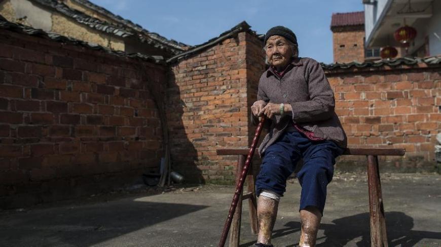 86岁的应彩琴坐在金华市婺城区蒋堂镇泽口村家中。她说:我十三四岁时放牛,为躲日本人,逃跑时脚上起了不少水泡,后来发痒抓破了开始烂腿。因为伤口很臭,前几年白天我用报纸包住怕别人闻到;晚上经常痛到第二天早上,实在痛得不行了我就哭