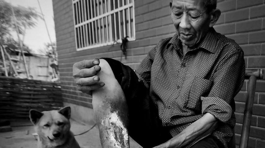 吴金忠,75岁,常山县紫港街道狮子口村人,两个哥哥都是烂脚病人。大哥去世了,二哥截肢了,我不想截肢,希望好心的医生帮我治好。