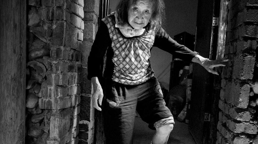 余松女,86岁,开化县何田乡卫枫村人。丈夫和大儿子死了,留下2个没结婚的傻儿子,家里家外靠大媳妇一个人。烂腿好久没用上药了。