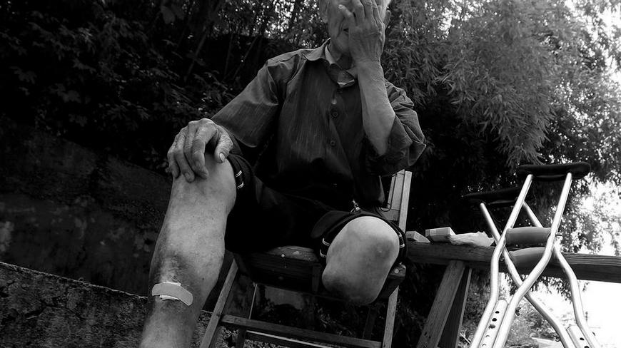 吴十一,81岁,常山县紫港街道狮子口村人,哥哥和弟弟都是烂脚病人,哥哥已去世。11年前脚烂到无法走路,不得不截肢。