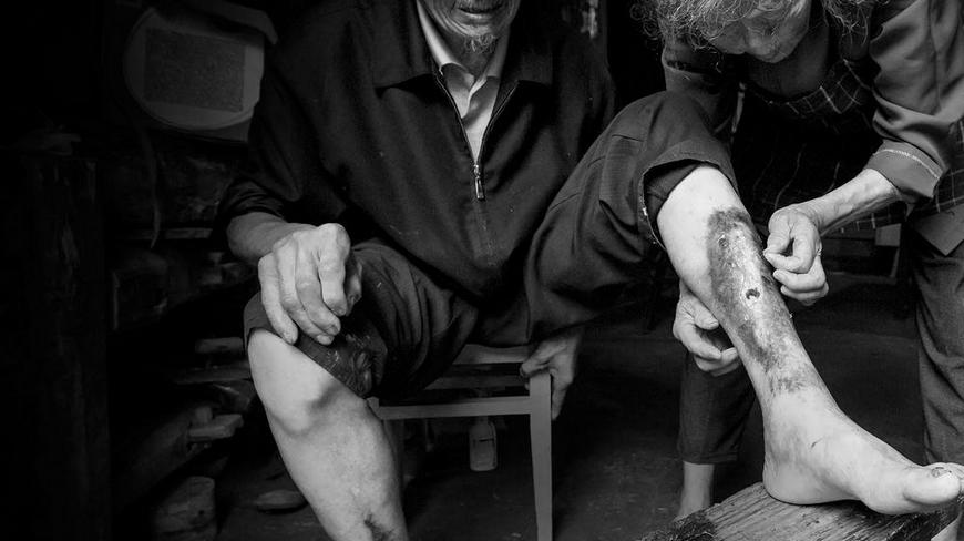 郑德海,87岁,开化县大溪边乡大桥头村人,老伴正给他清理伤口。小时候脚被树枝戳破就烂了,先是右脚,后是左脚,好好坏坏没好彻底过。
