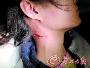 假快递员割伤独居女 刀口差点割开颈部大动脉(组图)-功夫客网