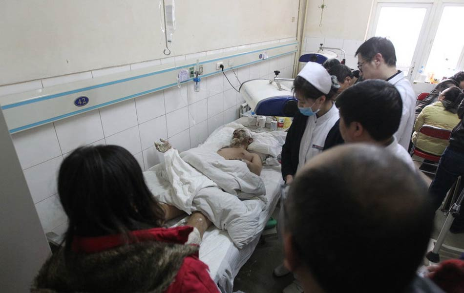 鞍钢喷爆事故受伤工人在医院接受治疗