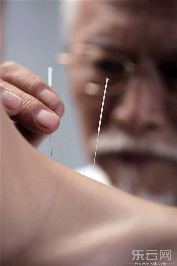 扎银针治疗的原理_扎银针图片