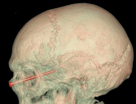 图为园丁的头部扫描图。