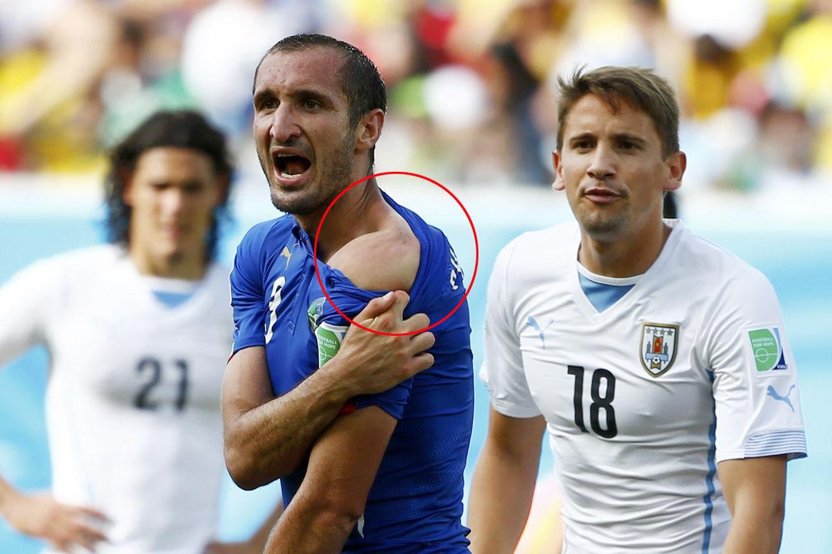 """苏亚雷斯又咬人了!而且这一幕还出现在了世界杯的舞台上。乌拉圭面对意大利的比赛,苏亚雷斯再次被""""魔鬼""""附体,他在场上直接口咬了意大利铁卫基耶利尼,而这样一次恶意的行为最终逃脱了主裁判的眼睛。"""