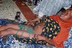 非洲残忍割礼 每年200万少女要受摧残(组图)
