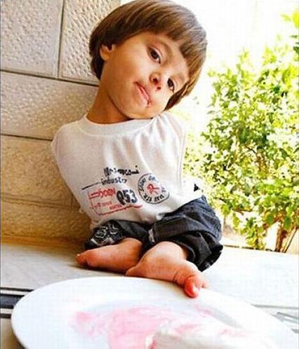 约旦无臂男孩生活感动世界
