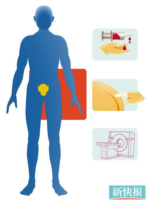 胃癌检查的最准确方法 慢性萎缩胃炎和胃癌