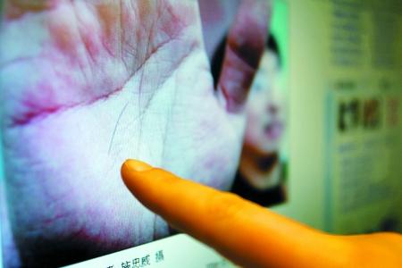 郑州市民翟女士带着3个月大的儿子理发回来,意外发现一小根头发扎进了