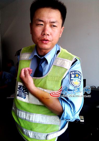 """南昌/""""倒霉""""的张飞在4月份的一次执勤中被肇事车主用砍刀砍伤头部。..."""
