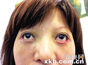 女生下面有几个眼图解-女子去眼袋失败下眼皮外翻 犹如 僵尸眼