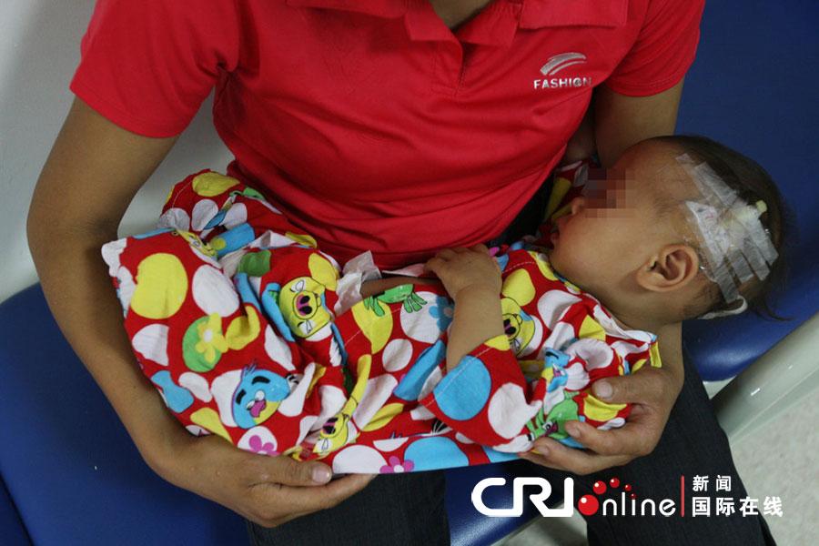 重庆一岁半女童乳房发育如少女高清组图 资
