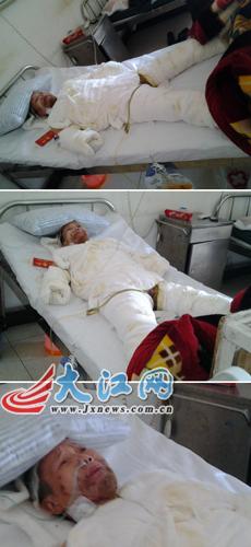 癫痫母亲不幸跌入火炕大面积烧伤 儿子借本网求助(图)