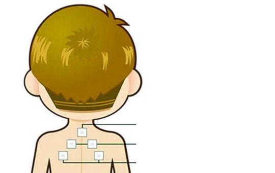 贴药时间内孩子不乱跑加剧出汗就行。C FP供图 医学 指导 广东省中医院针灸科刘建华教授; 广东省中医院针灸科徐振华主任 三伏天快来,极为热衷天灸的广东人又将开始冬病夏治。不过,很多人以为天灸主要是对成人、尤其是老年人而言,并不知道天灸也可用于治疗儿童常见病,且疗效远超成年人。不少人会问,天灸是一种发泡灸,这么热的天气让小孩子来灸怎么受得了?而且为何小孩子的效果更好呢?家长在带小孩来灸时要注意些什么呢?带着种种疑问,我们来请教中医针灸专家,看看他们怎么说? 天灸五大问 天灸的那个药贴到底是什么东西? 很