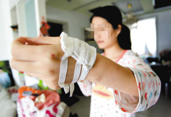 浴房玻璃门爆裂女子洗澡被炸伤